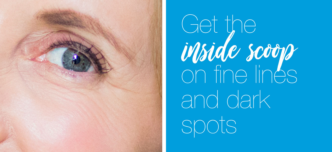 Get the inside scoop on fine lines and dark spots
